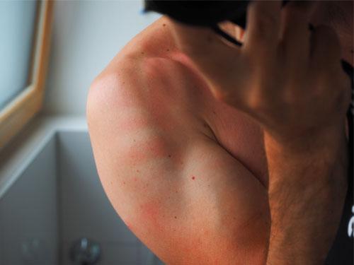 Dermatology Burns Skin