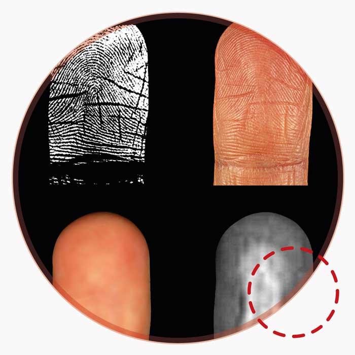 Fingerprints medical image